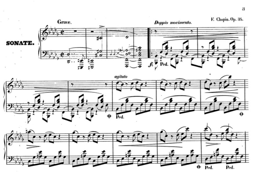 Musiikista kirjoittavan ongelmia - Kielikello